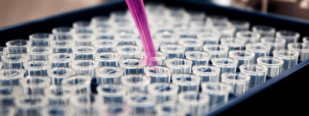 5 Wetenschappelijk bewezen tips om uitstelgedrag te verslaan